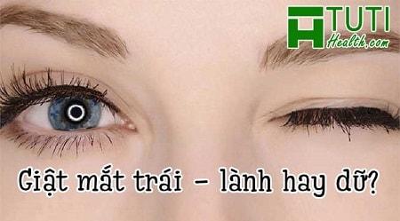 Bị nháy mắt trái liên tục là điềm gì