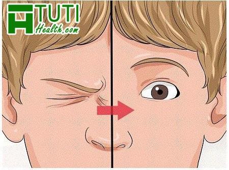 Giật mắt trái ở nam giới là điềm gì