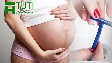 Cạo lông vùng kín trước khi sinh
