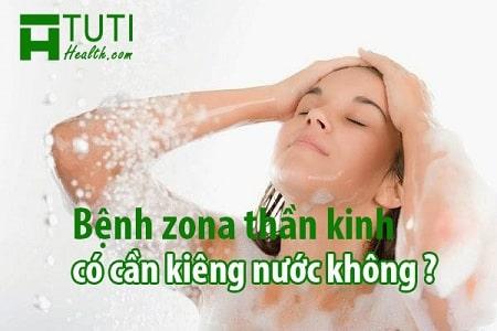 Bệnh zona thần kinh có cần kiêng nước không