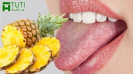 Vì sao ăn dứa bị rát lưỡi