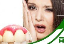 Bị chảy máu chân răng có nguy hiểm không ?