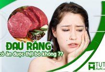 Đau răng có ăn được thịt bò không ?